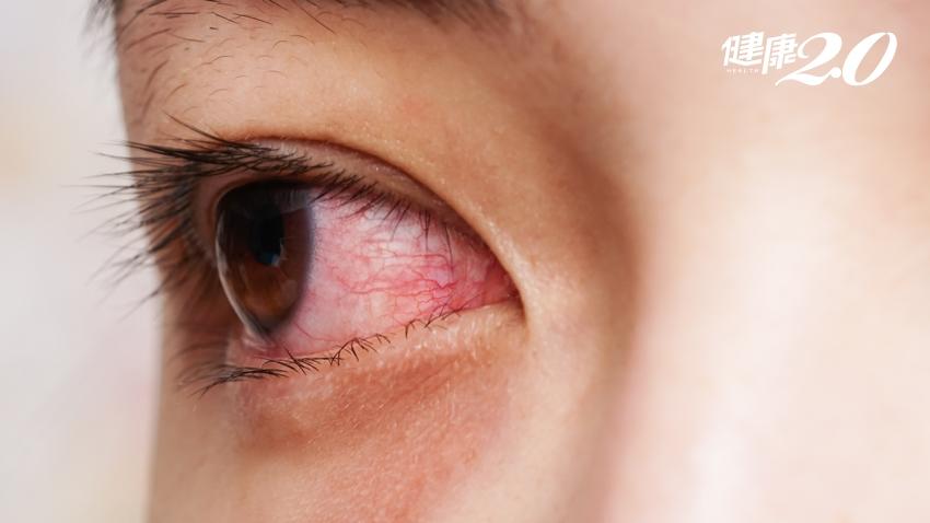 眼睛乾澀、頭髮枯黃、…女性容易「血虛」 8大症狀你中幾項?