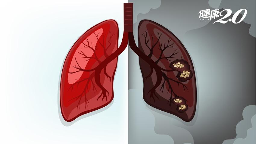 82歲嬤罹患肺癌 「這種」治療免開刀 就把腫瘤清乾淨