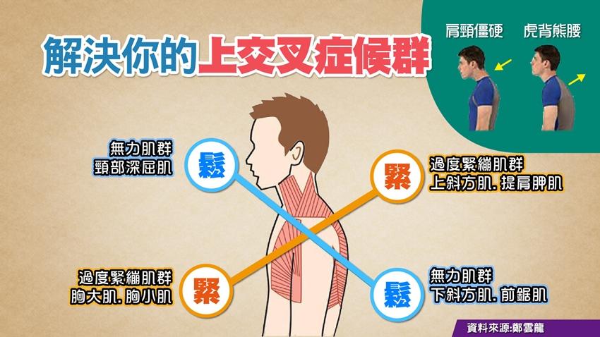 甩掉肌肉不協調的緊繃痛 達人鄭雲龍教你放鬆筋膜
