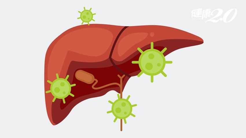 名醫因肝膿瘍逝世…台盛行率偏高 糖尿病患是高危險群
