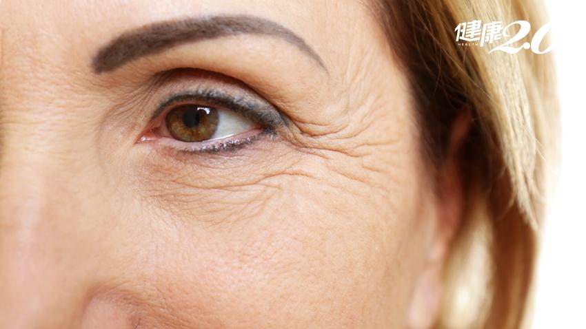 自由基是「老化」恐怖分子!抗氧化物、酵素幫你清除大患