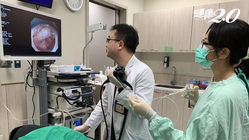 健檢揪出早期胃癌  內視鏡微創治療免開刀,還能保住完整的胃