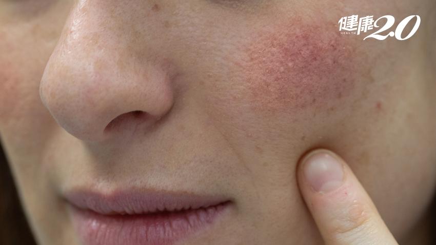 脂漏性皮膚炎反覆發作、擦類固醇恐失效!做好1件事預防復發