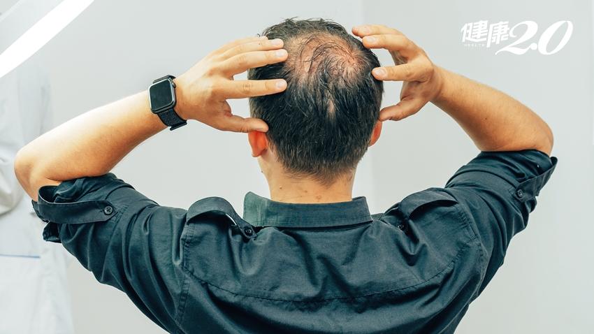 生髮新契機!北榮研究:拉扯皮膚可刺激毛髮再生