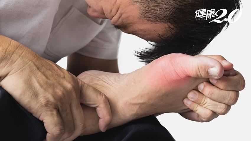 痛風發作後,不痛了就沒事?醫師釐清1個重要觀念