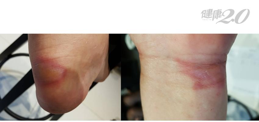 「化療後」手腳腫脹刺痛 中醫有效緩解!多吃「養血潤燥」食物