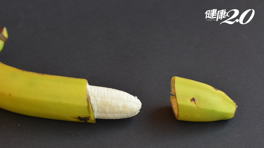 割包皮會變「迷你弟」?想太多!但可降低愛滋病、伴侶得子宮頸癌…