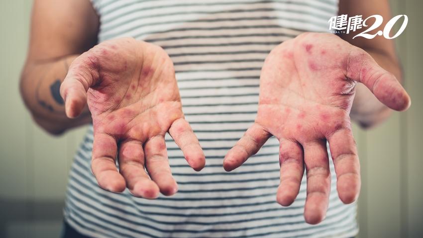 青少年也難逃腸病毒!17歲男併發肝炎、肺炎重症