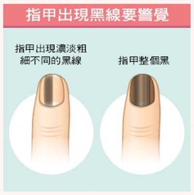 「指甲」洩漏你的健康!「3種現象」看出貧血、心血管疾病、皮膚癌