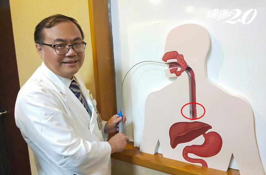 胃食道逆流吃藥也沒效?「無線科技膠囊」揪出癥結點、治療更精準