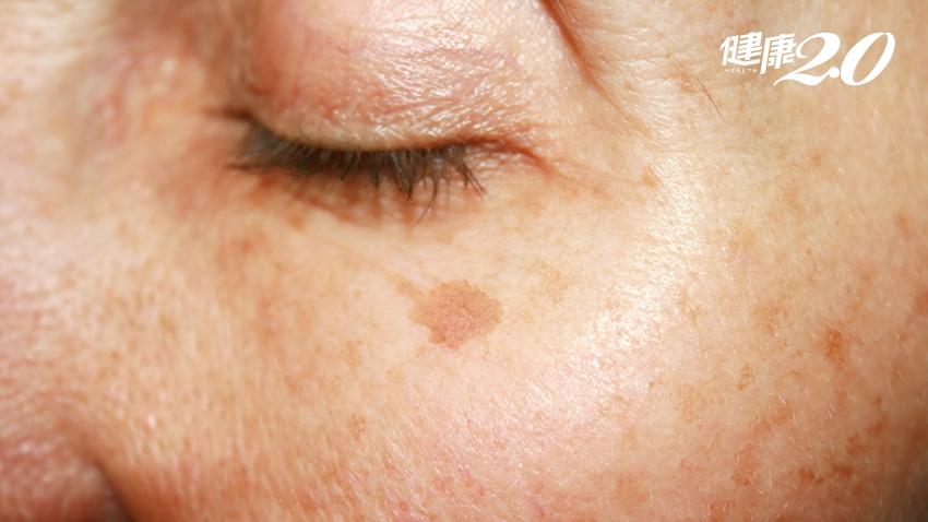 陽光好毒?紫外線過量曬出老人斑 2種情形當心皮膚癌!
