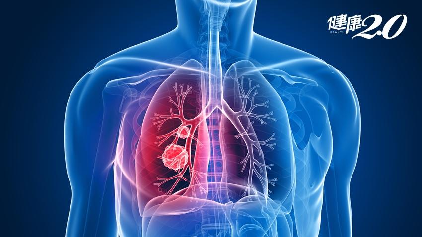 遠離肺癌不難!護肺4撇步+留意6個症狀