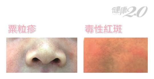 全圖解!長紅疹、胎記、脫皮…寶寶常見8種皮膚問題