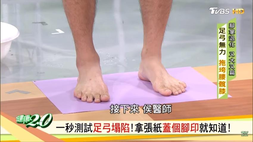 膝關節痛與腳底有關?1招檢測扁平足 足弓塌陷全身關節都糟殃