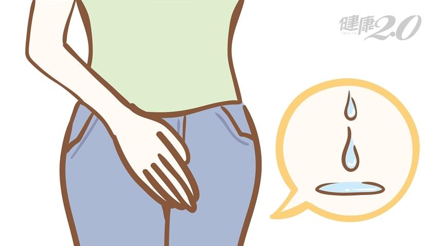 骨盆腔器官脫垂害妳漏尿?「3種手術」能治好9成患者