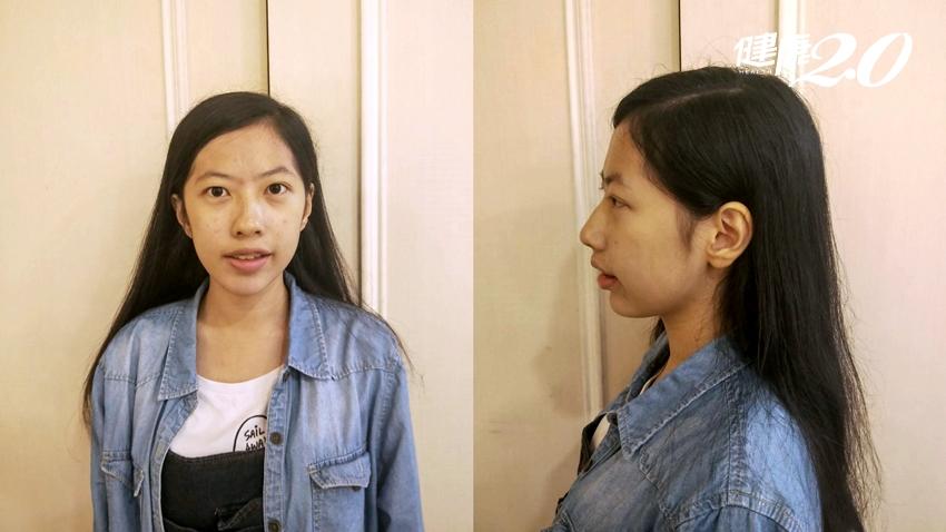 暴牙臉歪讓她睡不好、沒自信 「顳顎關節」3階段治療奏效!