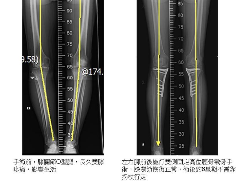 膝蓋「嘎嘎聲」小心退化性關節炎!「保膝手術」6周後自行走