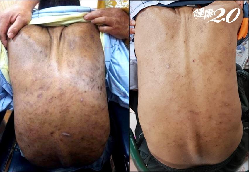 洗腎患者全身癢、抓到體無完膚 中醫研發「止癢藥浴包」2個月就改善