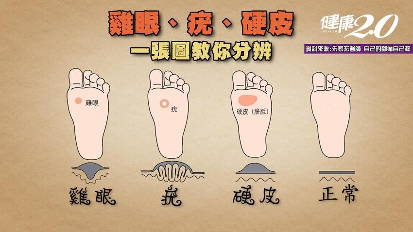 腳上長東西,是病毒疣、雞眼還是硬皮?