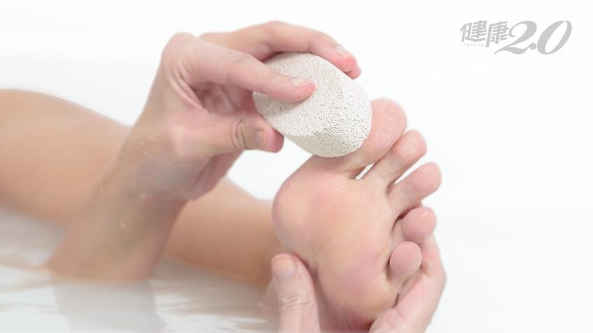 磨腳皮、敷足膜讓雙腳美美的?「足部去角質」做錯了傷皮膚!
