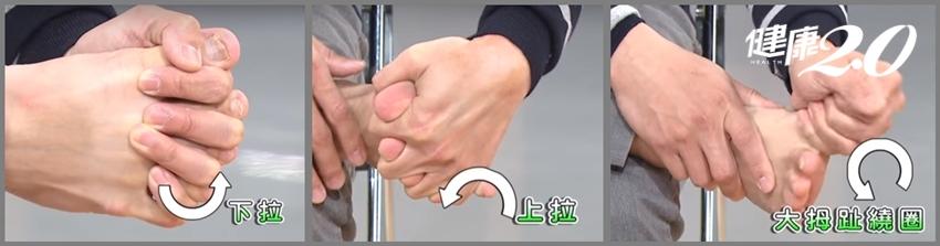 李蒨蓉「拇趾外翻」變跛腳!醫師3招有效改善醜腳丫