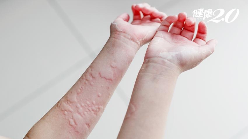 為何蕁麻疹總是半夜發作?中醫止癢新招加了這味藥 效果更好