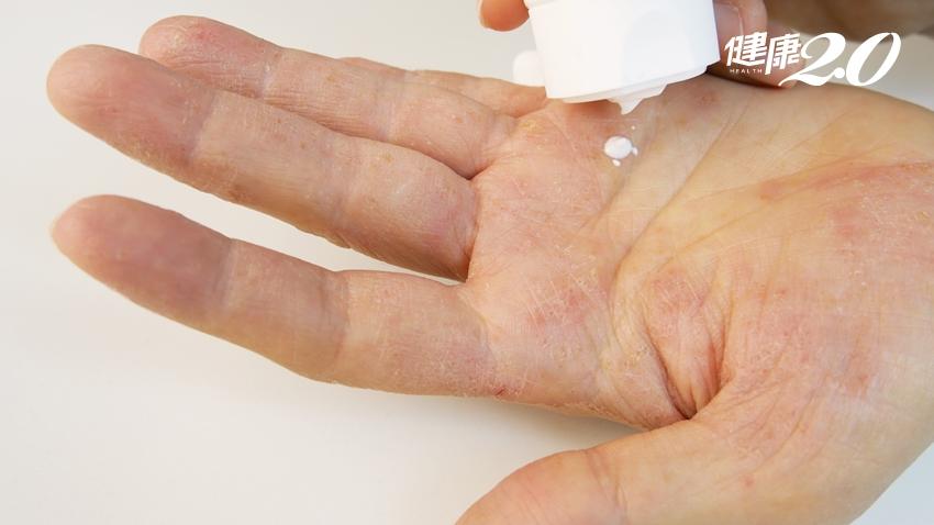 「濕疹」是皮膚太乾還是太濕?止癢用拍的更慘!醫師1招有效