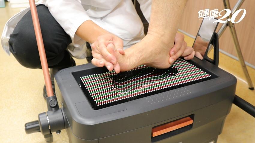 這四種人最容易膝蓋痛 快把5種護膝法記牢、防關節退化