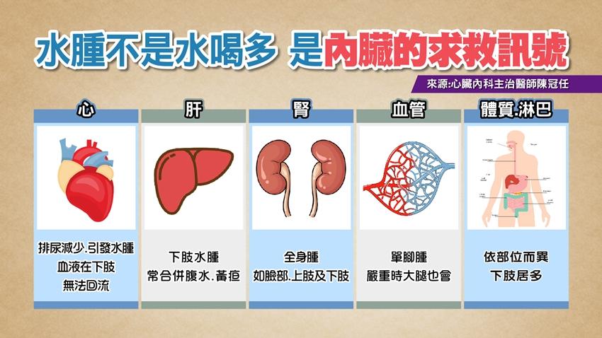 5種水腫輕忽不得!醫師警告:別靠利尿劑消腫