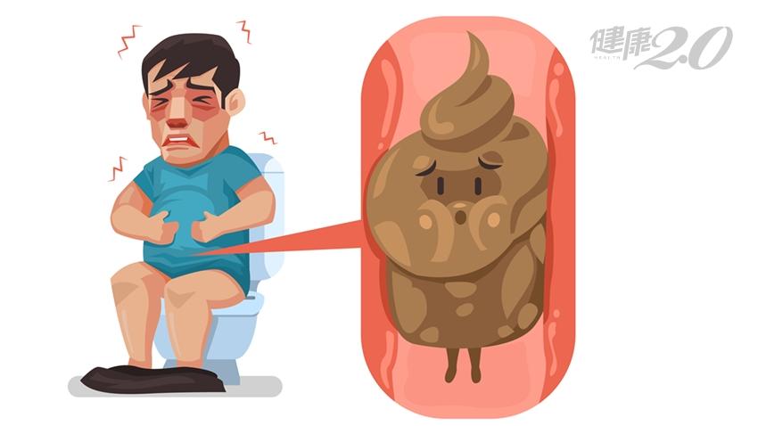 驚!宿便堆積腸道「有如車輪」 反覆發作小心腸道壞死