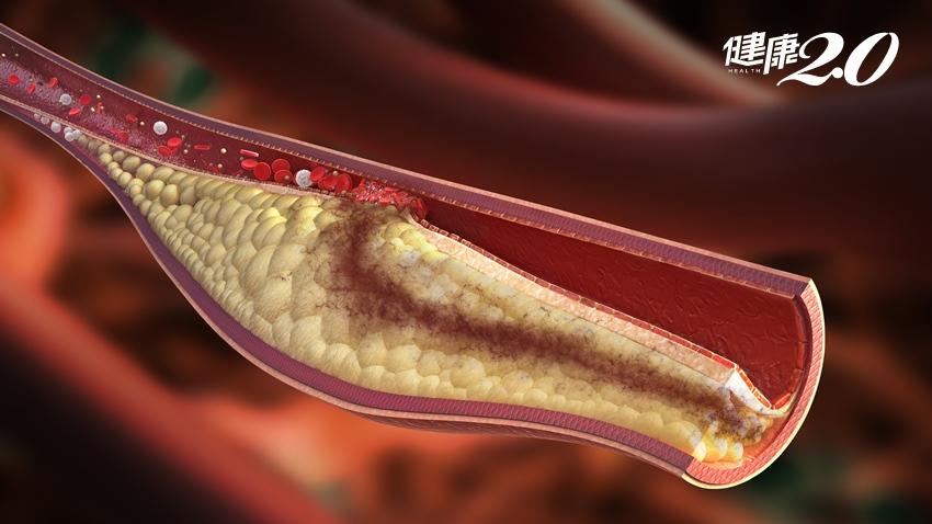 高血脂只靠運動、清淡飲食就能控制?醫:錯誤迷思!降膽固醇得這樣