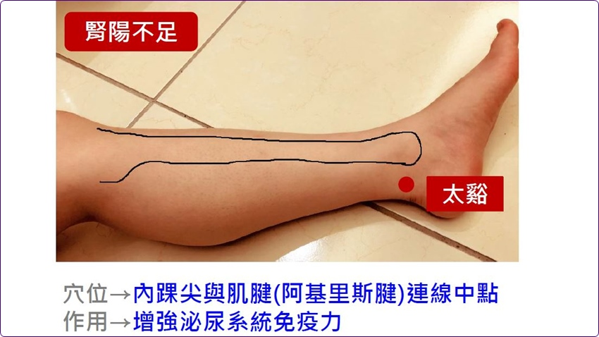 擺脫尿失禁 試試中醫的方法 每天按摩3分鐘提升膀胱力