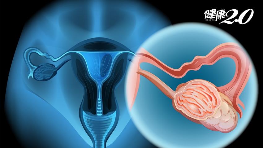 停經多年 出血又漏尿竟是卵巢癌晚期 每年做這檢查可揪出病灶