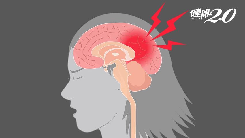 頭痛可能會「傷腦」!研究發現:經常偏頭痛,恐增加失智風險