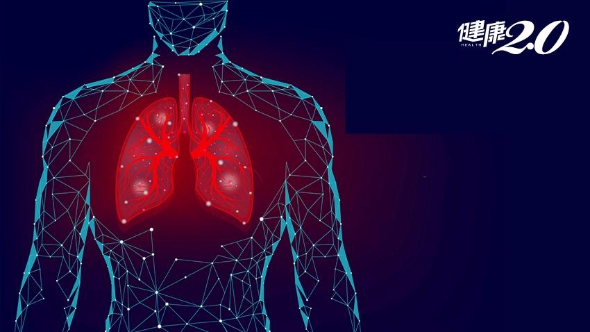 肺癌隱形殺手現身!只要5分鐘,釋放20倍PM2.5 醫師:它最可怕