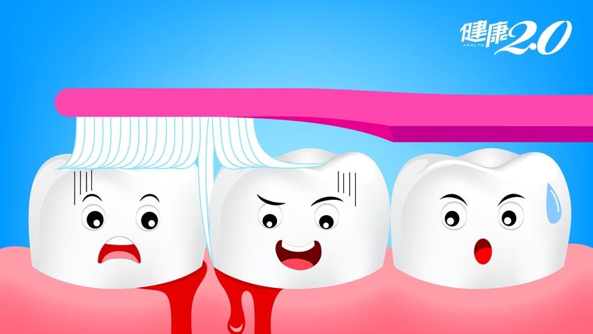 女大生牙齦反覆腫痛,小心青年型牙周病破壞力強 牙齒提早崩壞、掉光