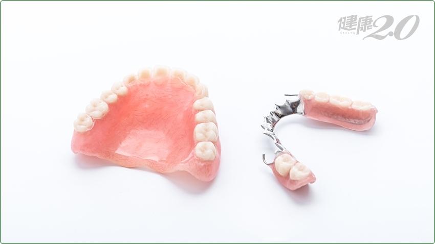 植牙、活動假牙 怎麼選才好?牙醫師這麼說…