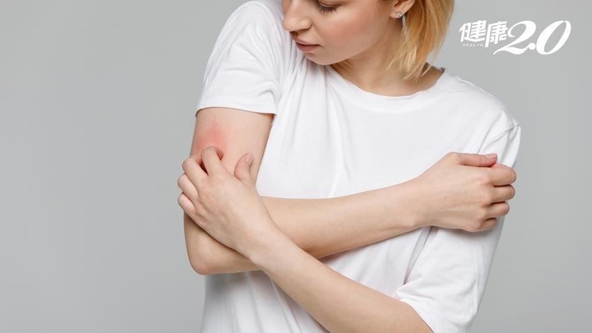 喝青草茶、椰子水降火氣解皮膚癢?小心問題更嚴重 教你5招遠離濕疹