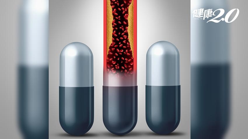 高血脂需要吃藥嗎?「高糖菸年高」符合3項以上要注意了