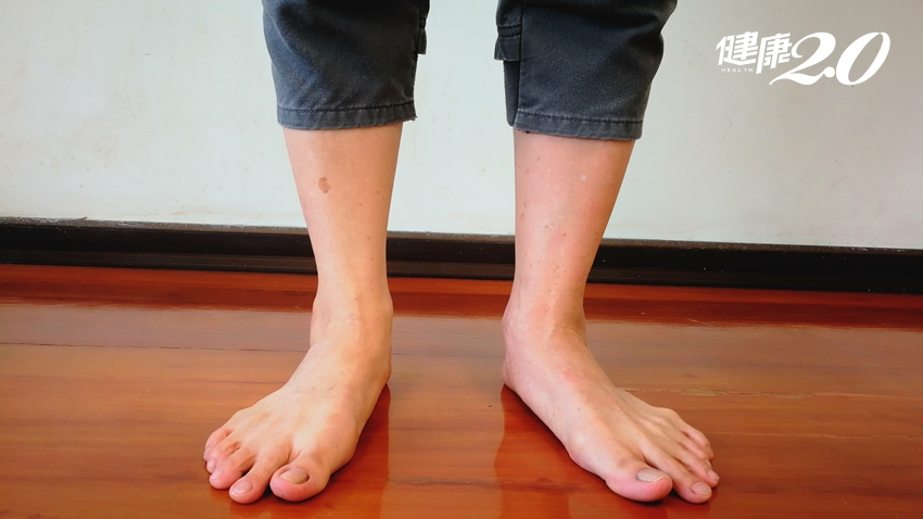 快量小腿!亞洲最新肌少症標準:超過「這數值」要注意了