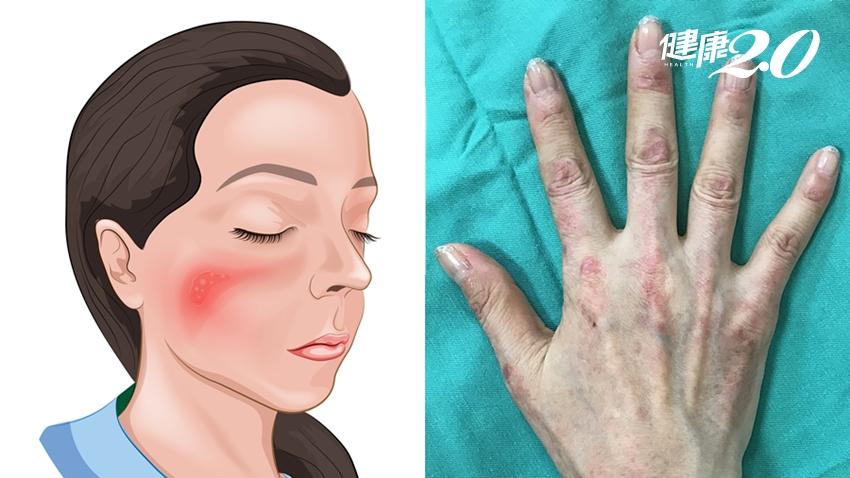 臉上怎麼紅一塊、紫一塊?這皮膚病不單純,小心併發癌症!
