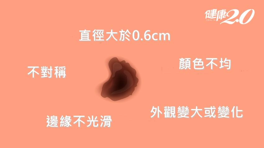 胯下長瘤竟是「黑色素瘤」轉移!這部位最好發,轉移淋巴復發率逾6成