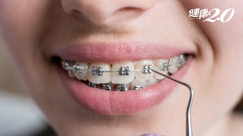 60歲還矯正牙齒,會不會被笑死?醫:不只為美觀,主要是這三個理由