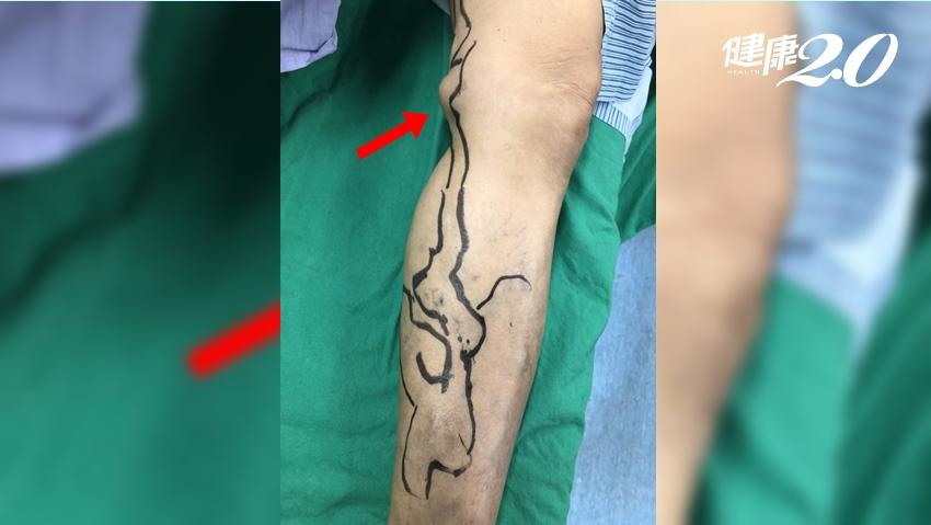 婦腿血管瘤大如雞蛋 微創膠水密合血管治療靜脈曲張