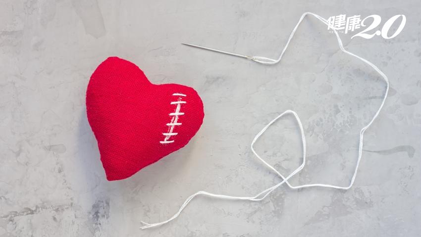 8旬婦人免「開心」擺脫心臟衰竭命運 術後3年全無症狀