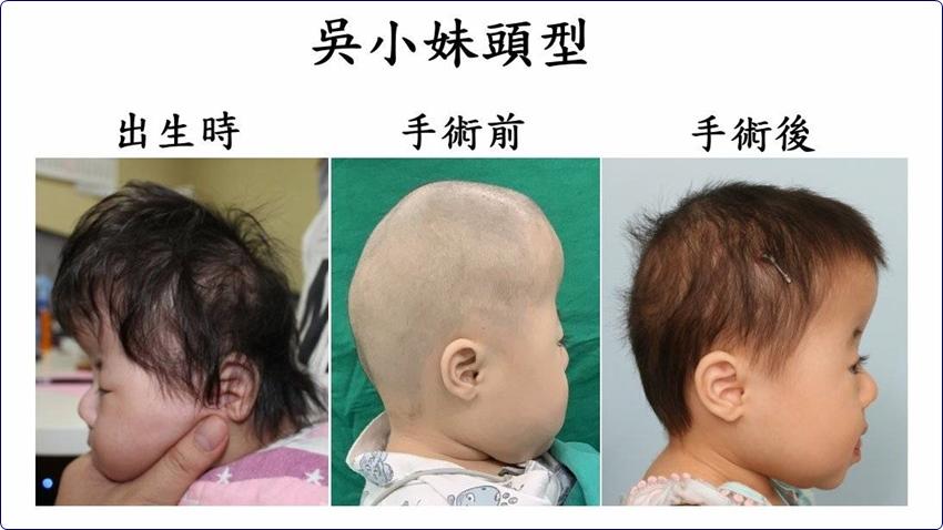 女嬰頭型「寬扁高」如卡通辛普森家庭 醫師幫她擴張腦容量、智力不受損