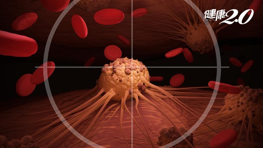 肺癌治療新突破!歐洲腫瘤年會:晚期存活期首度超過3年