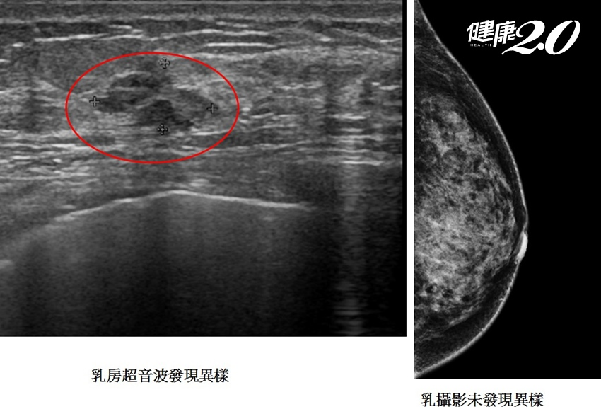 乳房會痛才嚴重?摸到硬塊時光做乳攝還不夠 加這檢查才可降低風險