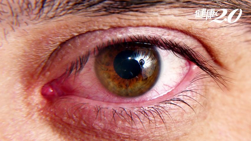 秋冬空污嚴重眼睛易過敏!發癢時這2件事千萬別做