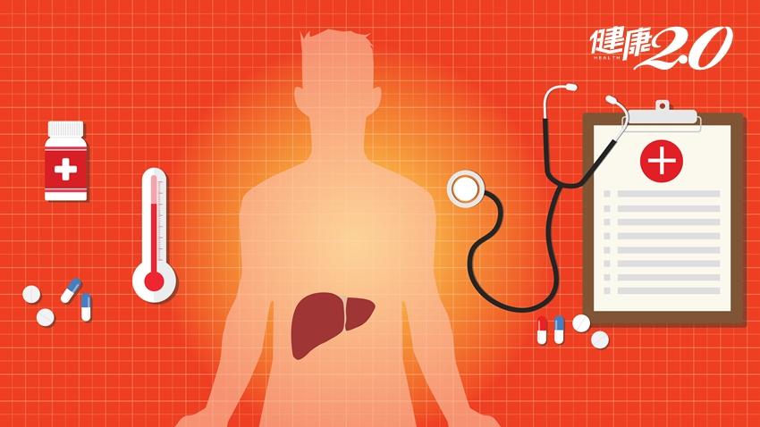 根除C肝告別肝炎!C肝病毒怎麼傳染?症狀有哪些?
